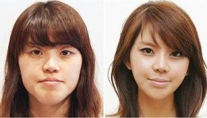 photos-avant-apres-chirurgie-esthetique-en-coree-du-sud-1
